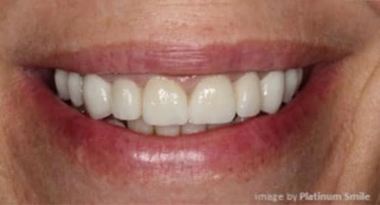 After Crowns and Bridges Treatment