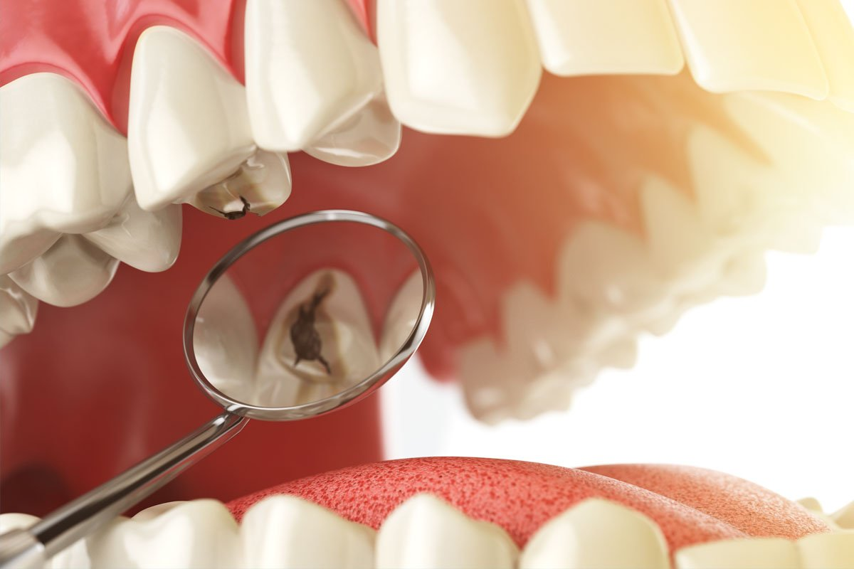 Tooth Decay And Plaque