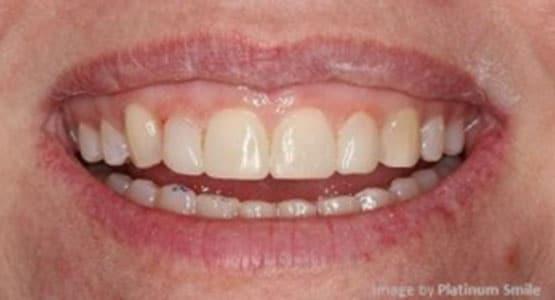 After Resin Veneers Treatment