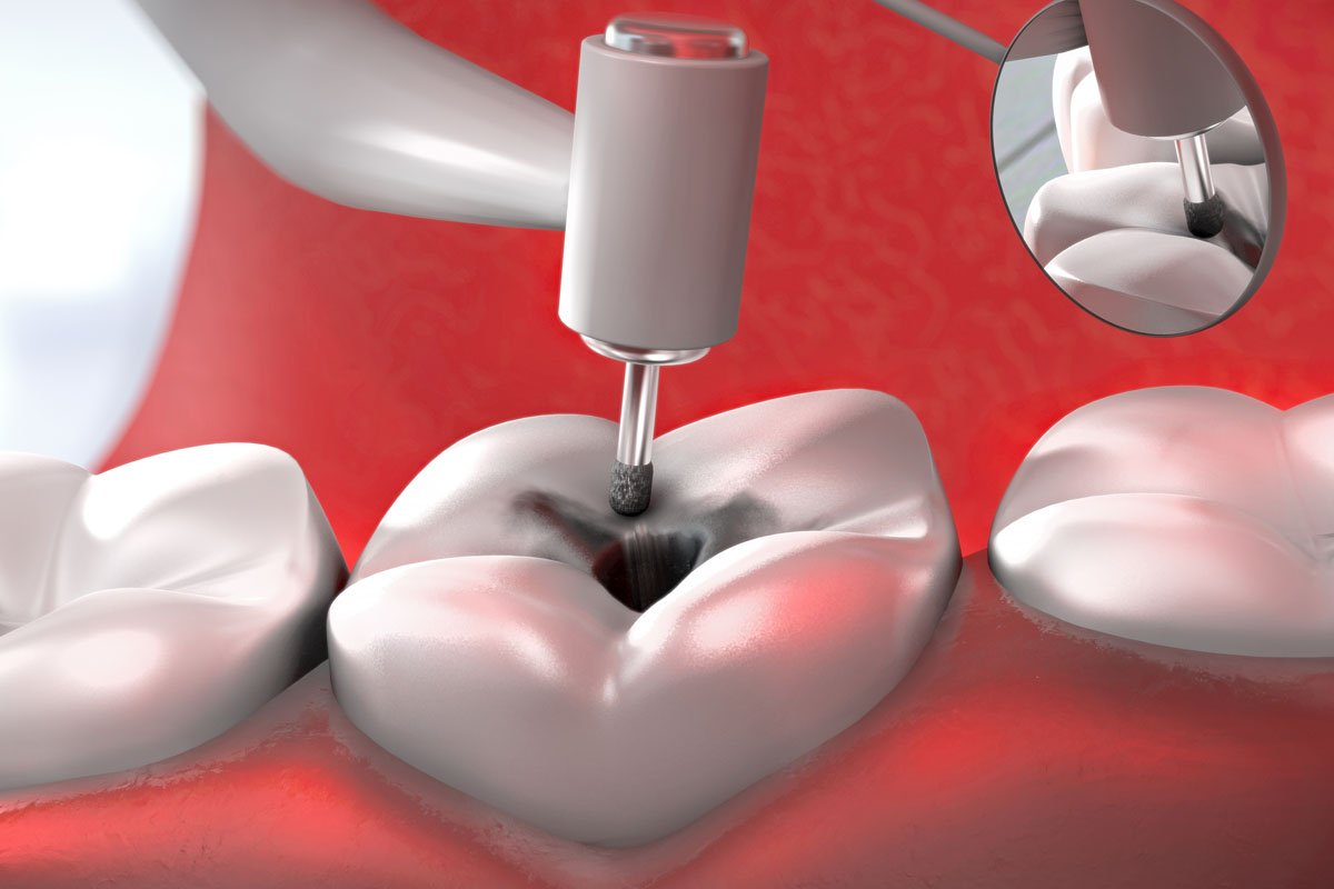 Toothache Remedies Causes Symptoms Platinum Smile Dental