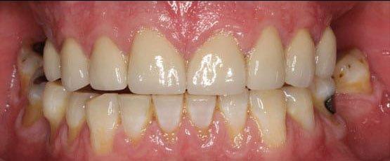 After Porcelain Crowns Treatment