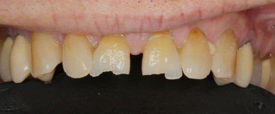 Before Porcelain Crowns Treatment
