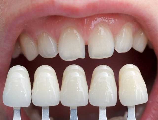 Dental Veneers Mandurah